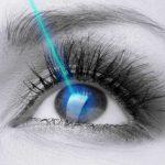 لیزیک چشم چیست؟